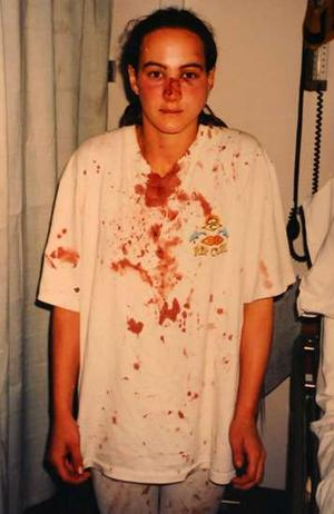 Corinna Horvath, on the night she was assaulted by police (photo by Corinna's mother)